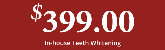 $399 In-House Teeth Whitening